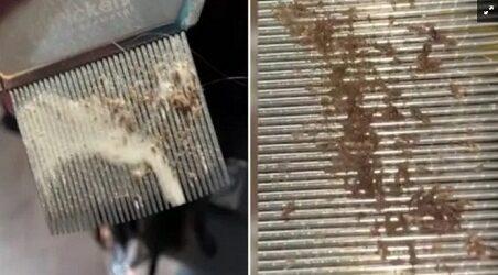 IMPACTANTE…Quitan los piojos a mujer tras ocho semanas de contagio; video se hace viral
