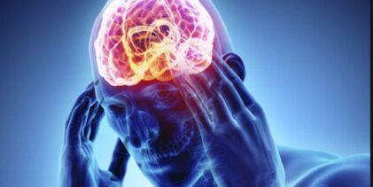 20 síntomas tempranos del accidente cerebrovascular